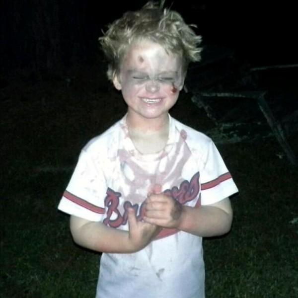 Trick or Treat from a bloody Braves player!