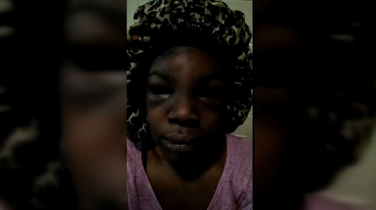 A Chattanooga woman says she lost her baby after she was brutally beaten up by a group of people on Monday. (Image: Shaaylahh)