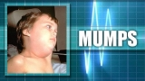 Arkansas health officials confirm mumps cases in Pulaski County