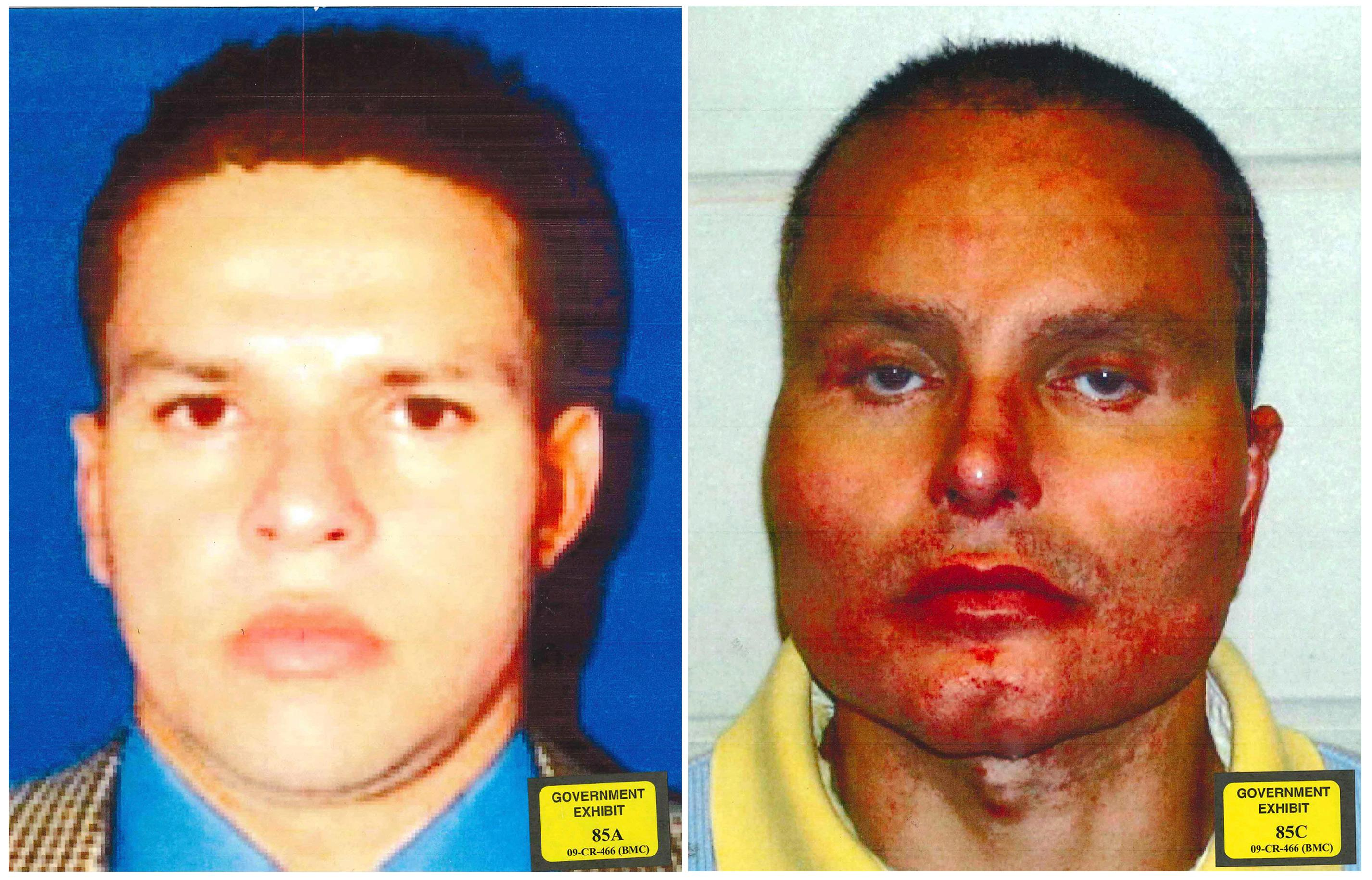 "This combination of undated photos provided by the U.S. Attorney's Office for the Southern District of New York shows former Colombian drug lord Juan Carlos Ramirez Abadia. The latest star witness for the government in the trial against accused drug lord Joaquin ""El Chapo"" Guzman has been more notable for his appearance than his testimony. Ramirez Abadia told the jury that he had at least three surgeries to change his appearance. The photo at left shows Ramirez Abadia prior to his surgeries and the photo at right is post-surgery. (U.S. Attorney's Office for the Southern District of New York via AP)"